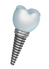 Close up photo of a tooth implant in Anchorage or Wasilla, AK.