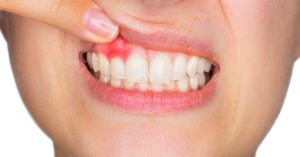 Red, inflamed gums can be a warning sign of periodontal disease.