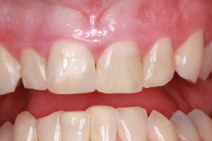 Close up photo of healthy gums not suffering from gum disease.