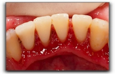 Inflamed gums of an Alaskan patient with gum disease.