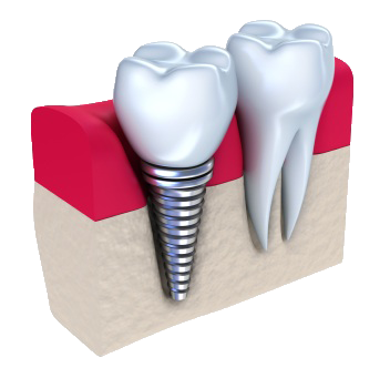 dental implant demonstration graphic for dental implants in Anchorage