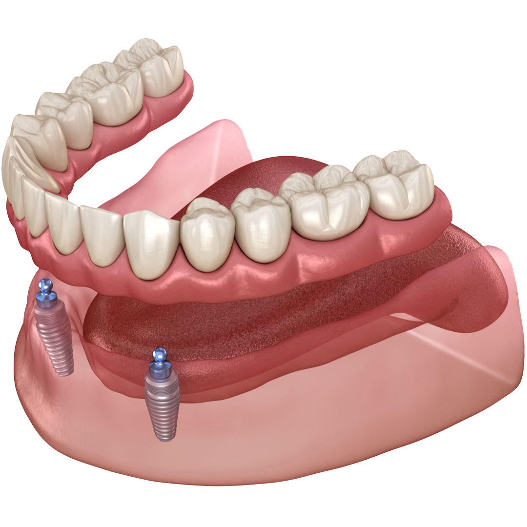 Implant supported dentures in Anchorage and Wasilla